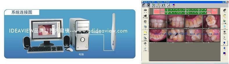 资讯频道 产品资讯 跃视口腔内窥镜运用 构造的摄像镜头,可以伸入